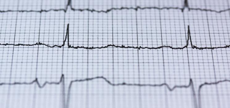 9 Health Apps, die Herzinfarkt, Schlaganfall und Vorhofflimmern erkennen